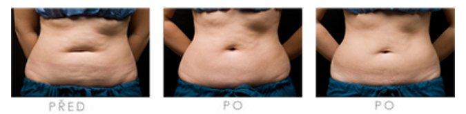 Výsledky liposukce břicha